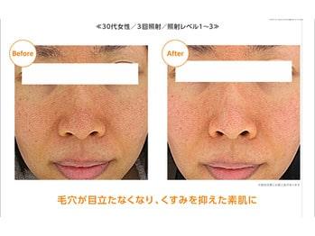 マツエク・ネイルサロンbutterfly平塚店のブログ画像